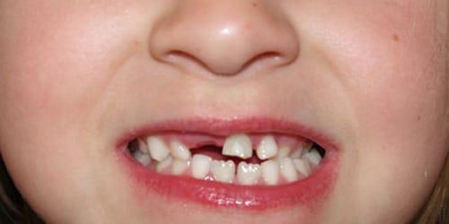зубы выпадают у детей