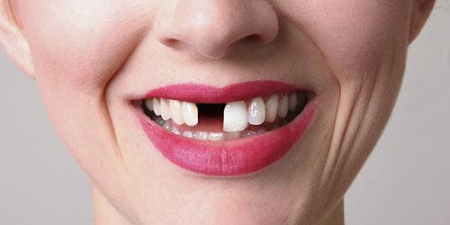 приснилось что выпал передний зуб без крови