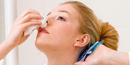к чему снится женщине кровь из носа