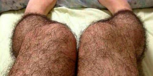 сонник волосатые ноги