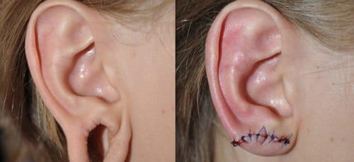поврежденное ухо