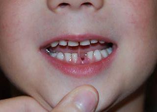 Зубы с кровью и без