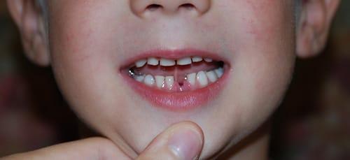 сонник зубы с кровью и без