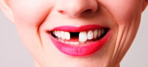 потеря зубов во сне
