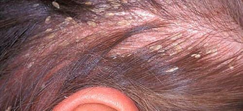 Сон-черви в волосах