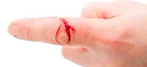 к чему снится порез на пальце