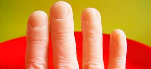 отрубленные пальцы во сне
