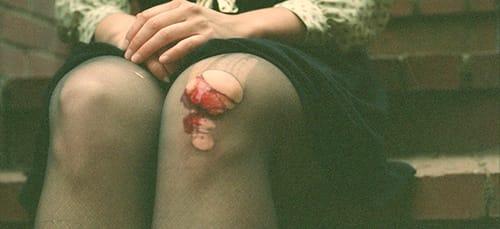 разбитые колени