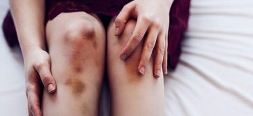 синяк на ноге во сне
