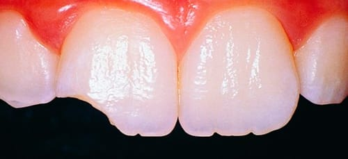 сонник откололся зуб