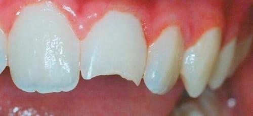 к чему снится зуб откололся