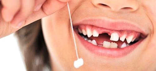 Во сне видеть выдернуть зуб самому себе фото