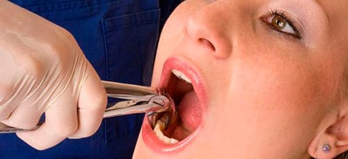 к чему снится вырвать зуб