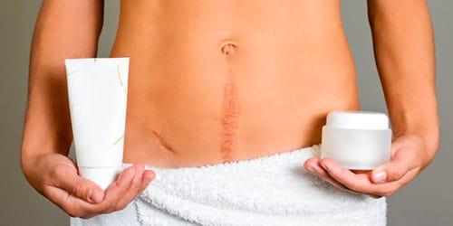 к чему снится шрам на теле