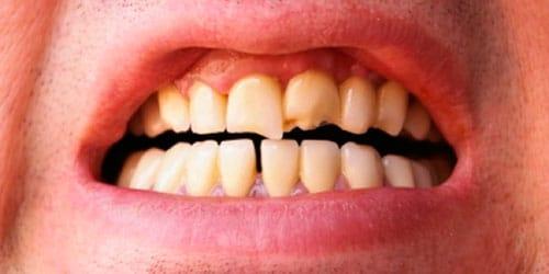сонник сломался зуб