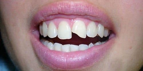 к чему снится сломался зуб
