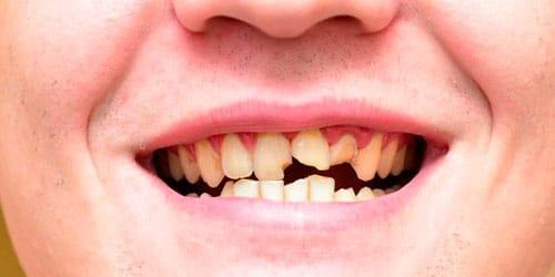 сонник сломанный зуб