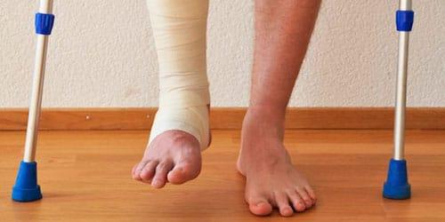 к чему снится сломать ногу