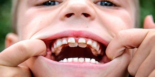 к чему снится растут зубы в два ряда