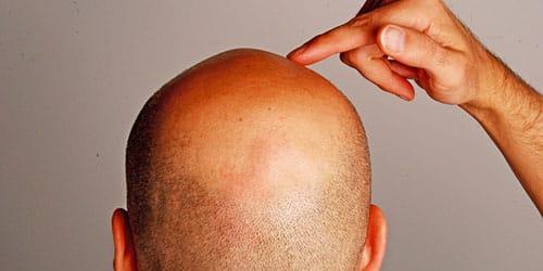 сонник лысая голова