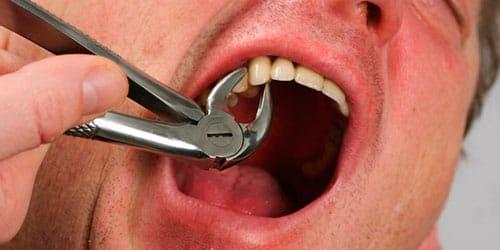 сонник выдернуть зуб