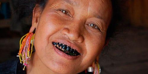 сонник черные зубы