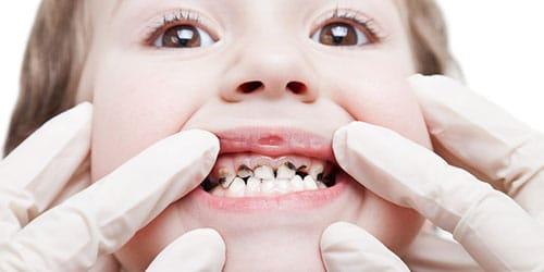 черные зубы у ребенка во сне