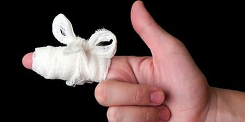 мышь укусила за палец