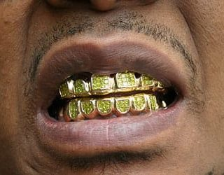 К чему снятся золотые зубы?