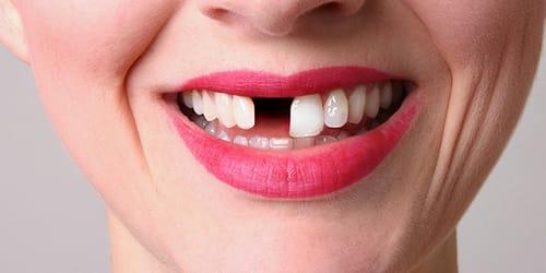 выпал золотой зуб