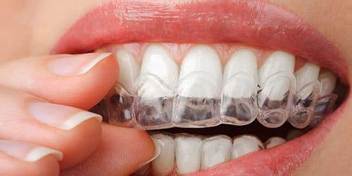 отбеливать зубы