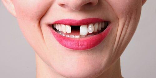 выпадают белые зубы