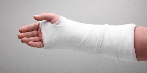 сломанная рука во сне
