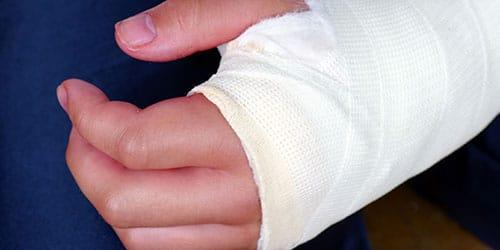 сломанная левая рука