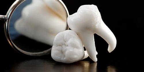 к чему снится что у вас выпал гнилой зуб