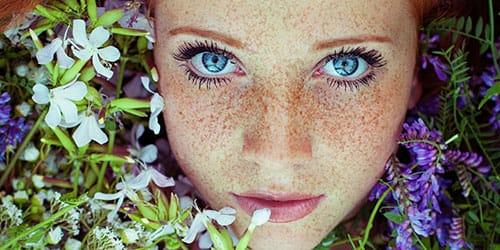 веснушки на своем лице