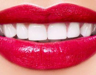 Белые красивые зубы