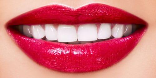 видеть белые красивые зубы во сне