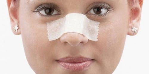 сломанный нос у девушки