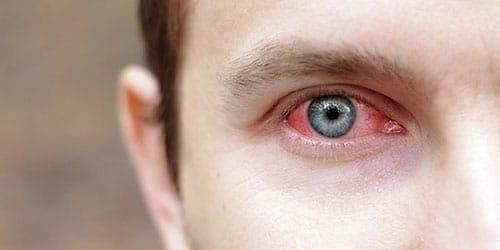 к чему снятся больные глаза