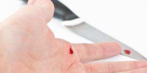 порезать руку до крови