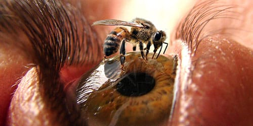 пчела укусила в глаз