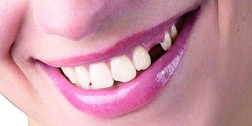 к чему снится что раскрошился зуб