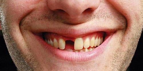 вывалился передний зуб