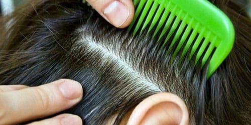 паразиты в волосах