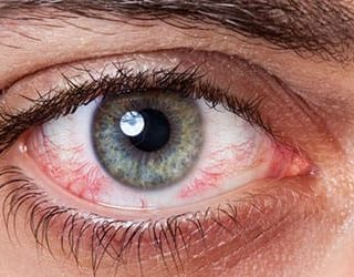 Сонник красные глаза