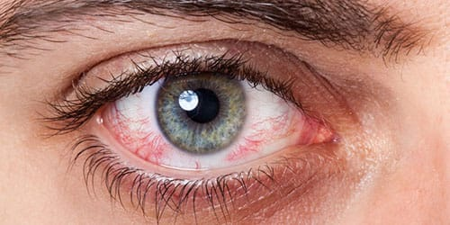 к чему снятся красные глаза