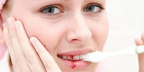 к чему снится кровь из зуба