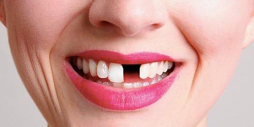 Сонник выпал передний зуб к чему снится выпал передний зуб во сне