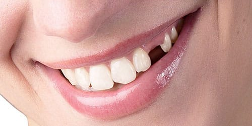 к чему снится что выпал передний зуб